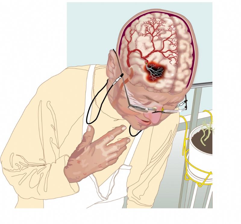 stor hjärnblödning prognos